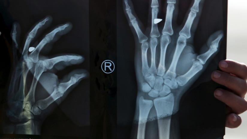 Se fractura el pulgar y se lo reemplazan con un dedo del pie por un error grave en la cirugía