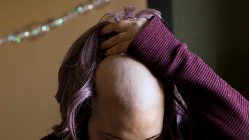 Una nueva estrategia médica podría evitar la caída del cabello durante la quimioterapia