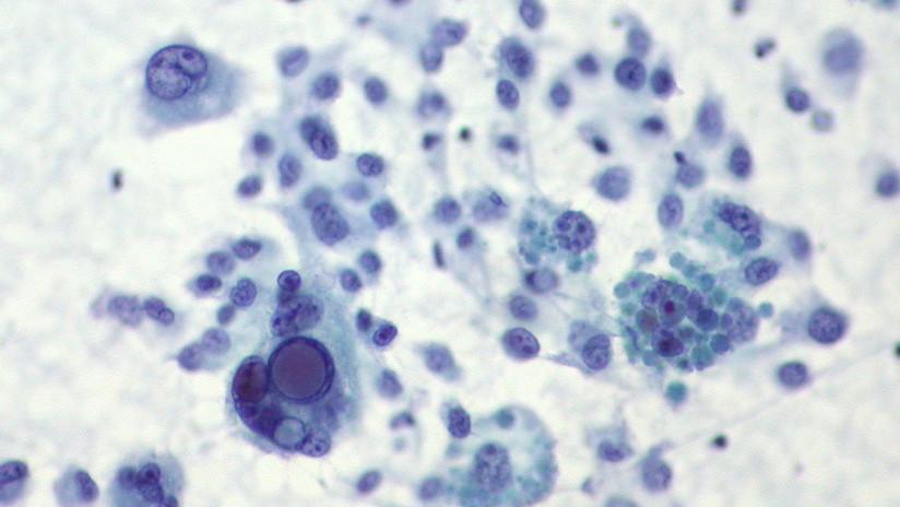 Pierde gran parte del cuello por culpa de un lunar y ahora conciencia al mundo sobre el riesgo del melanoma