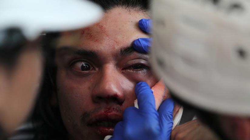 Chile: Al menos 230 manifestantes han perdido la vista por disparos de la Policía durante las protestas