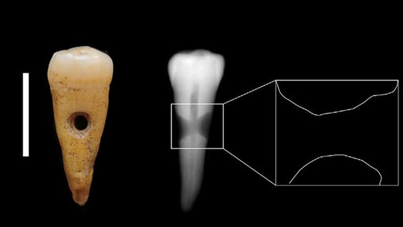 Hallan joyas hechas de dientes humanos en un antiguo asentamiento en Turquía