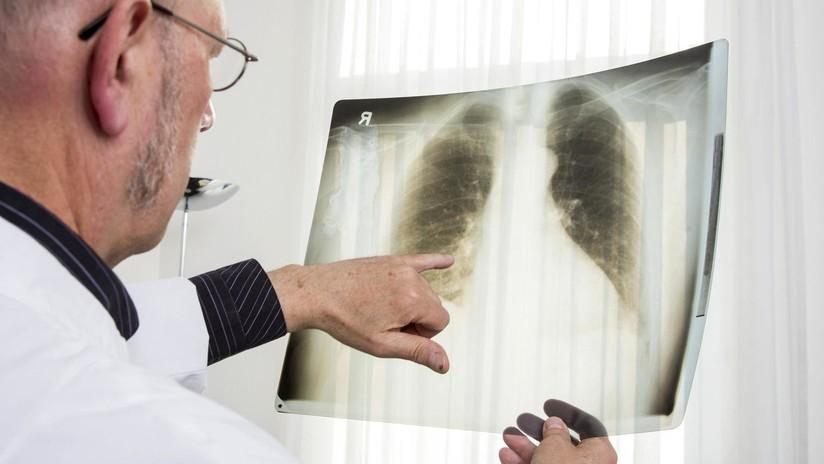 FOTOS: Quería donar sus pulmones, pero los doctores descubren que estaban negros tras fumar durante 30 años