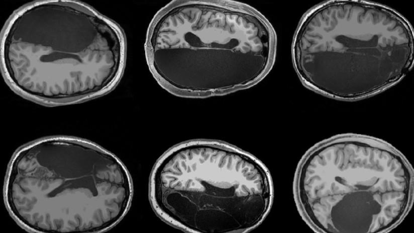 Científicos muestran cómo se reconectan neuronas en personas sin un hemisferio cerebral