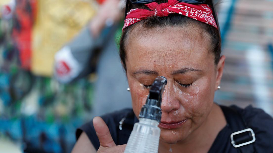 Hasta 241 chilenos con lesiones oculares