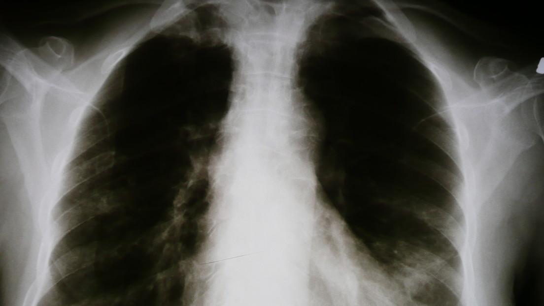 Google enseña a la IA a diagnosticar condiciones pulmonares con la precisión de un especialista humano