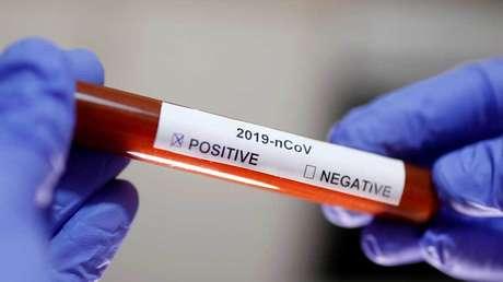 China revela cuándo empezarán las pruebas de la primera vacuna contra el coronavirus
