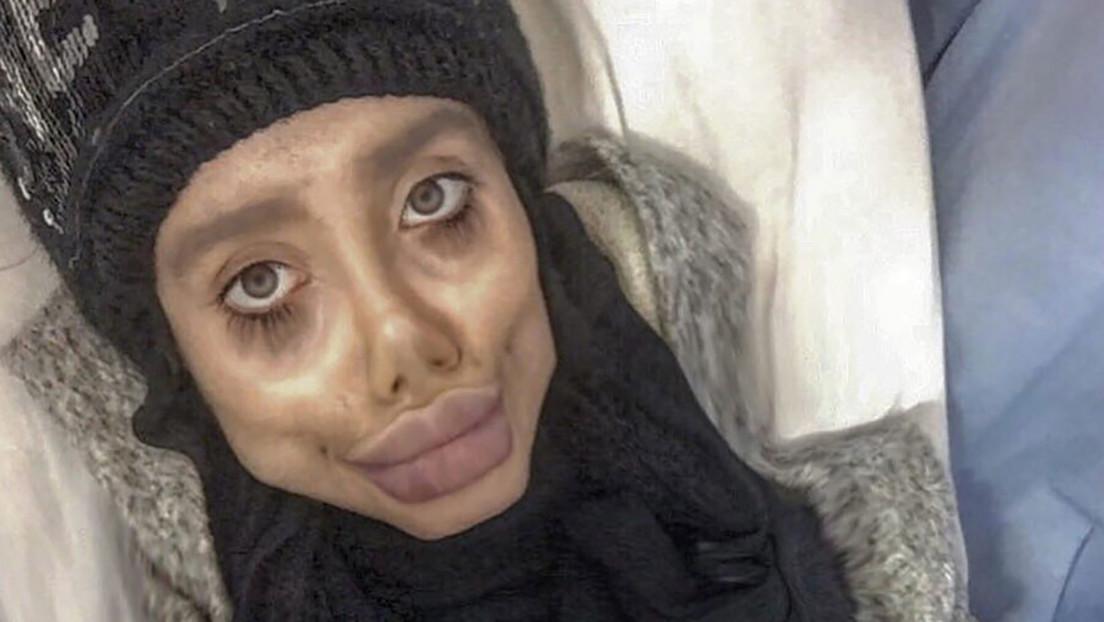 La 'Angelina Jolie' iraní lucha por su vida conectada a un ventilador tras contraer covid-19 en una cárcel