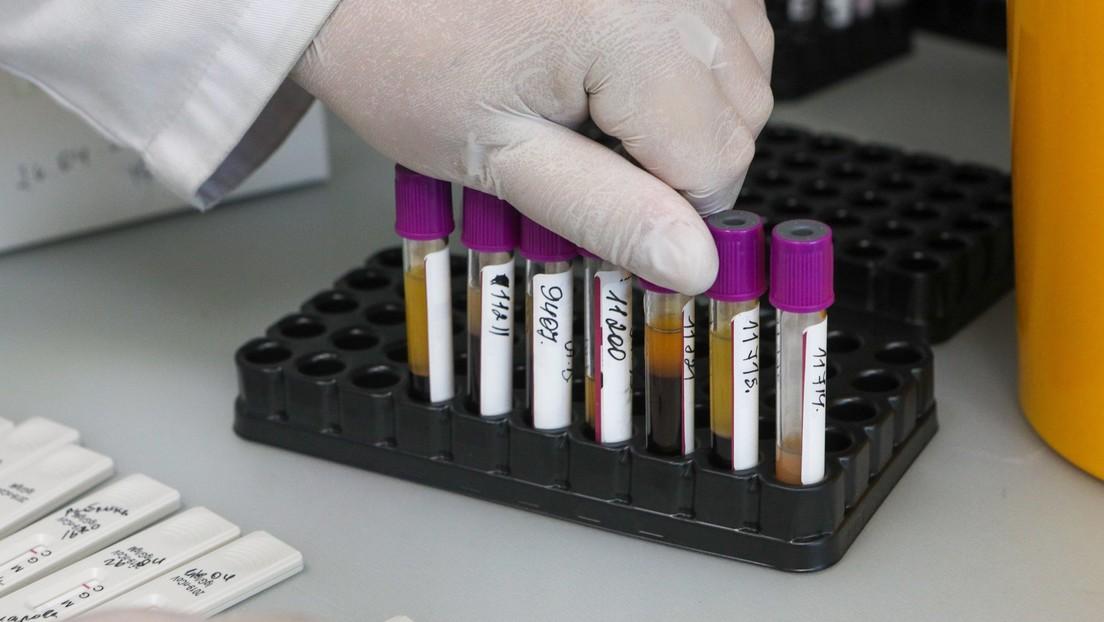 """""""En ningún caso hay que automedicarse"""": un destacado científico ruso afirma que más del 50 % de los infectados con covid-19 pueden no tener síntomas"""