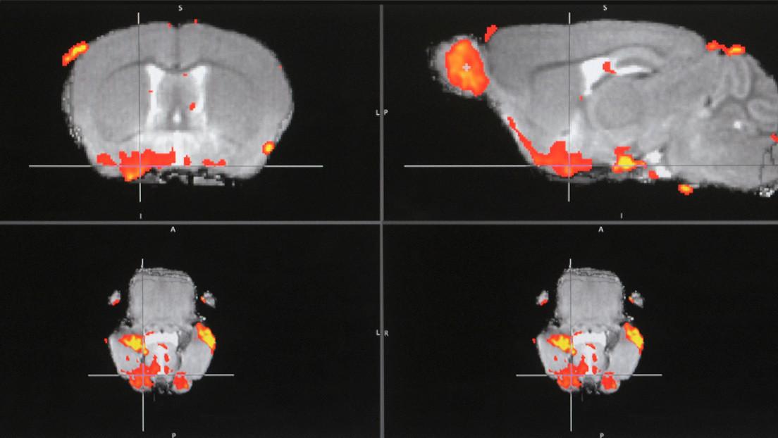 Descubren un 'interruptor' del dolor en el cerebro que abre el camino a una nueva clase de analgésicos