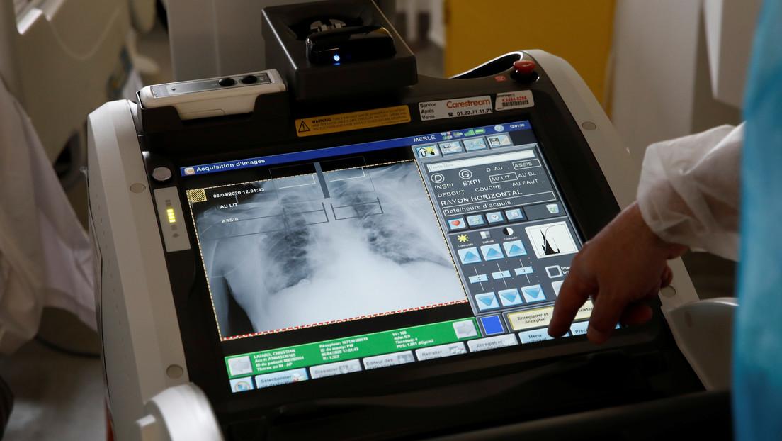 Realizan el primer trasplante de pulmón de Europa en un paciente con covid-19