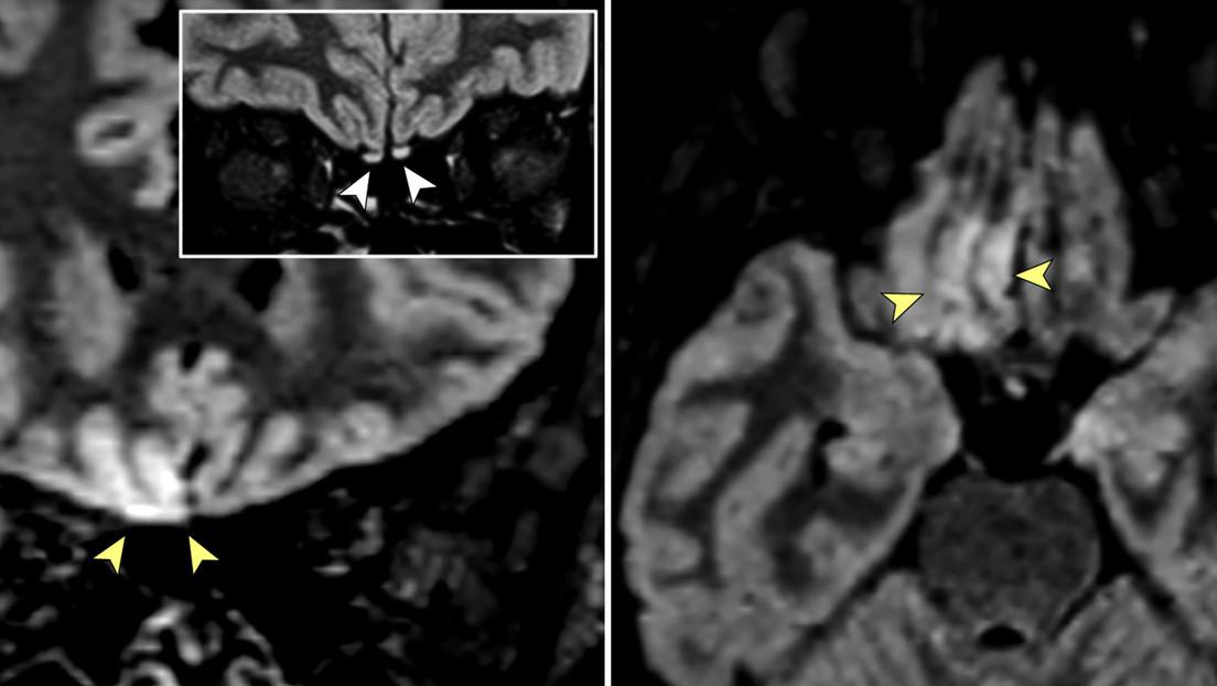 """Imágenes de resonancia magnética muestran signos de """"invasión cerebral viral"""" en una paciente con covid-19"""