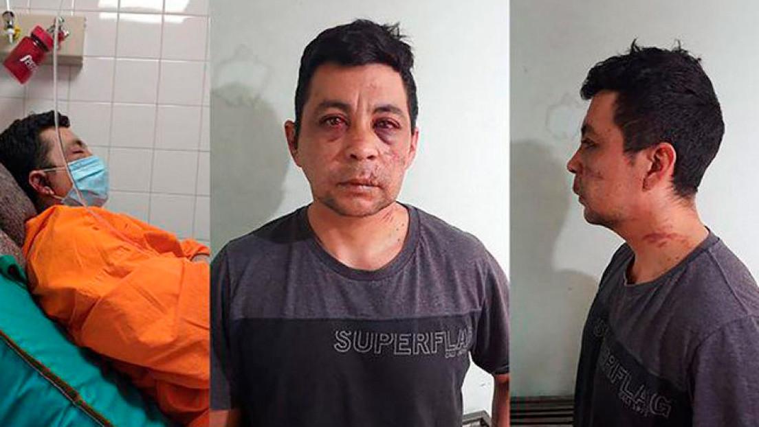 Roban, golpean y le incendian la casa a un enfermero argentino que tuvo covid-19 para obligarlo a que abandone el barrio