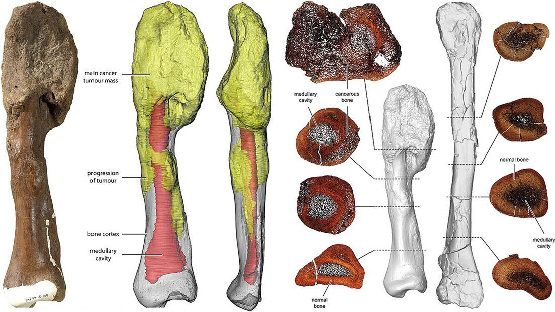 Científicos obtienen la primera evidencia de un cáncer maligno en un dinosaurio que vivió hace unos 76 millones de años