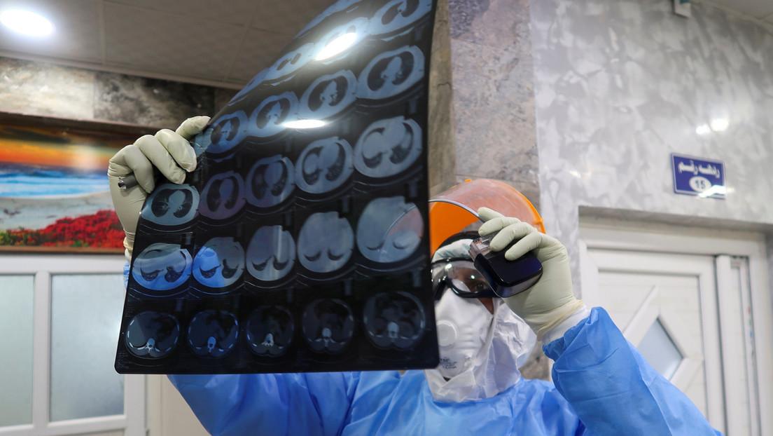 Un estudio revela una nueva causa de mortalidad en los enfermos de covid-19