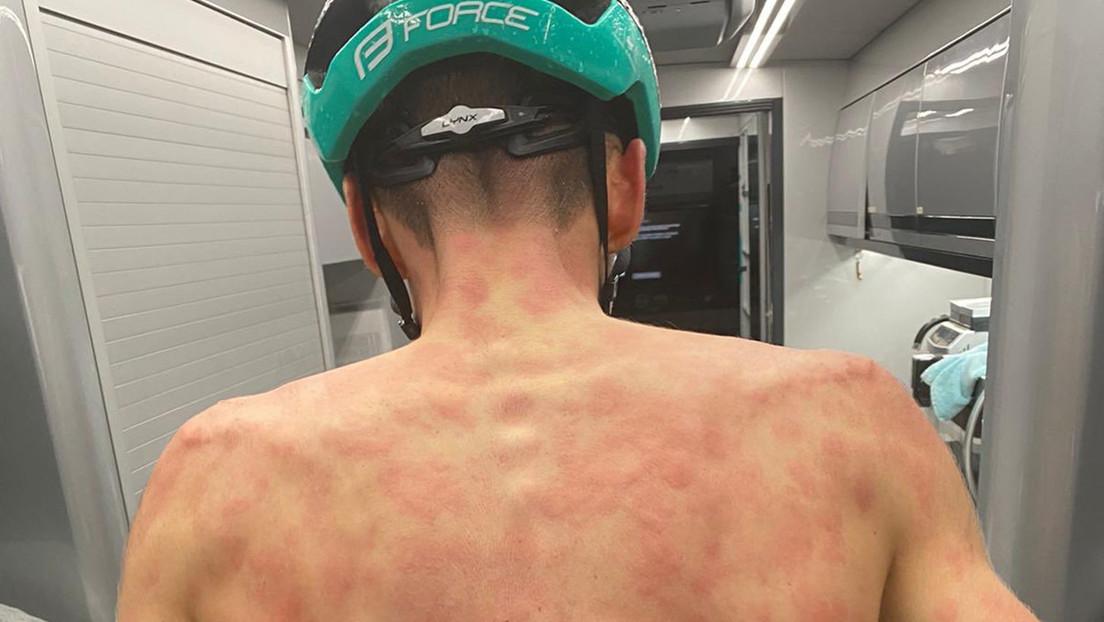 FOTOS: Una súbita granizada castiga a un grupo de ciclistas en plena carrera y deja dolorosas marcas en sus espaldas