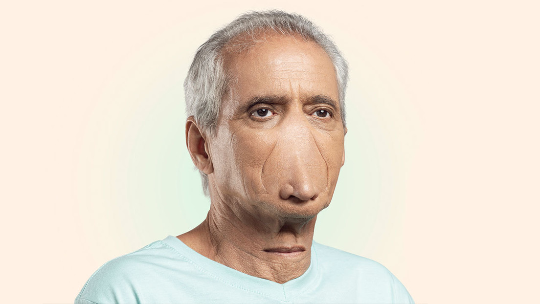 FOTO: Muestran cómo debería ser una persona para que le sea útil llevar la mascarilla en el mentón