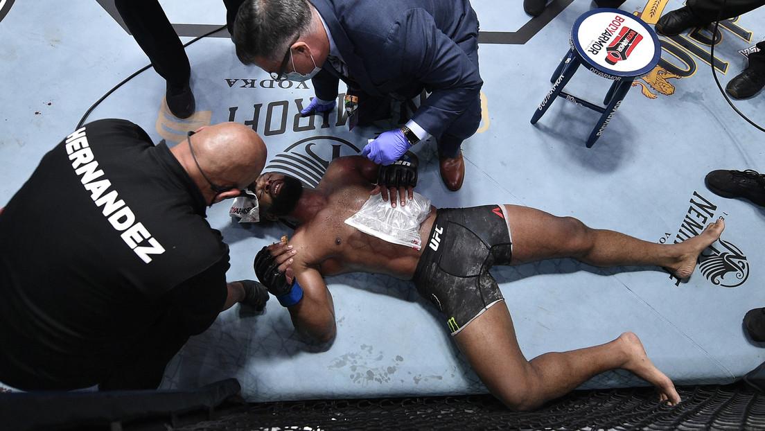 Un excampeón de artes marciales mixtas se fractura una costilla durante la pelea estelar de la UFC y después publican la radiografía de su lesión
