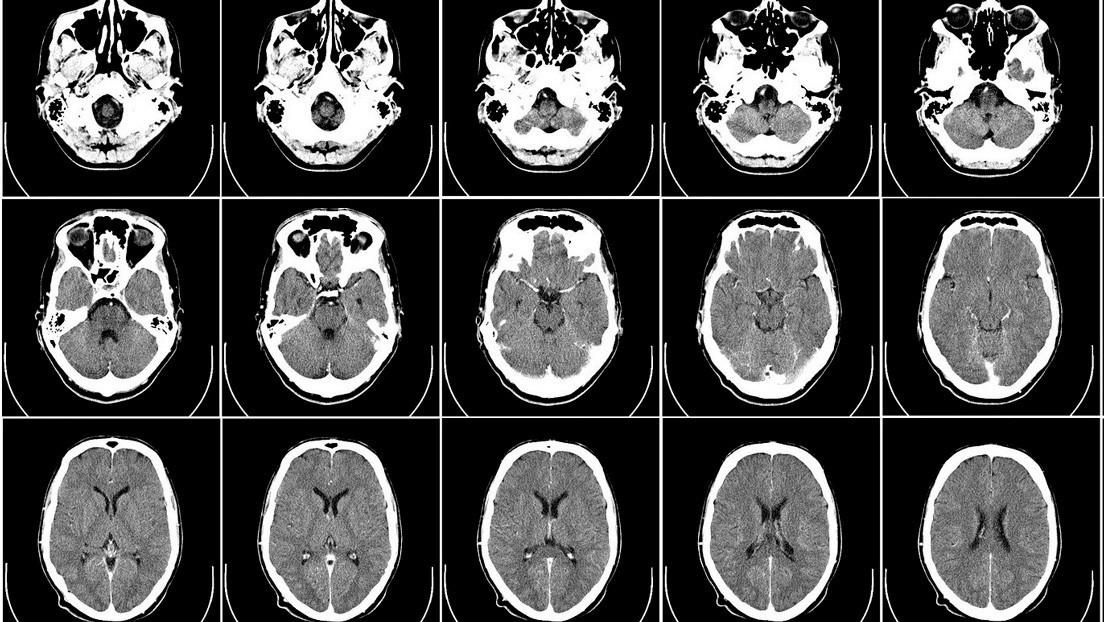 Un aficionado a la jardinería contrae de la tierra de una maceta una infección mortal que le 'disolvió' el cerebro