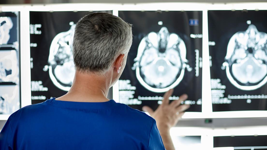 La receta de un neurobiólogo que logró rejuvenecer su cerebro en diez años