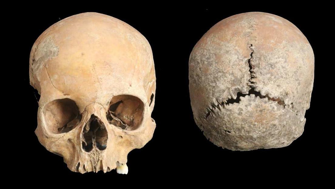 Documentan el caso más antiguo de mutilación facial como castigo en la Inglaterra anglosajona