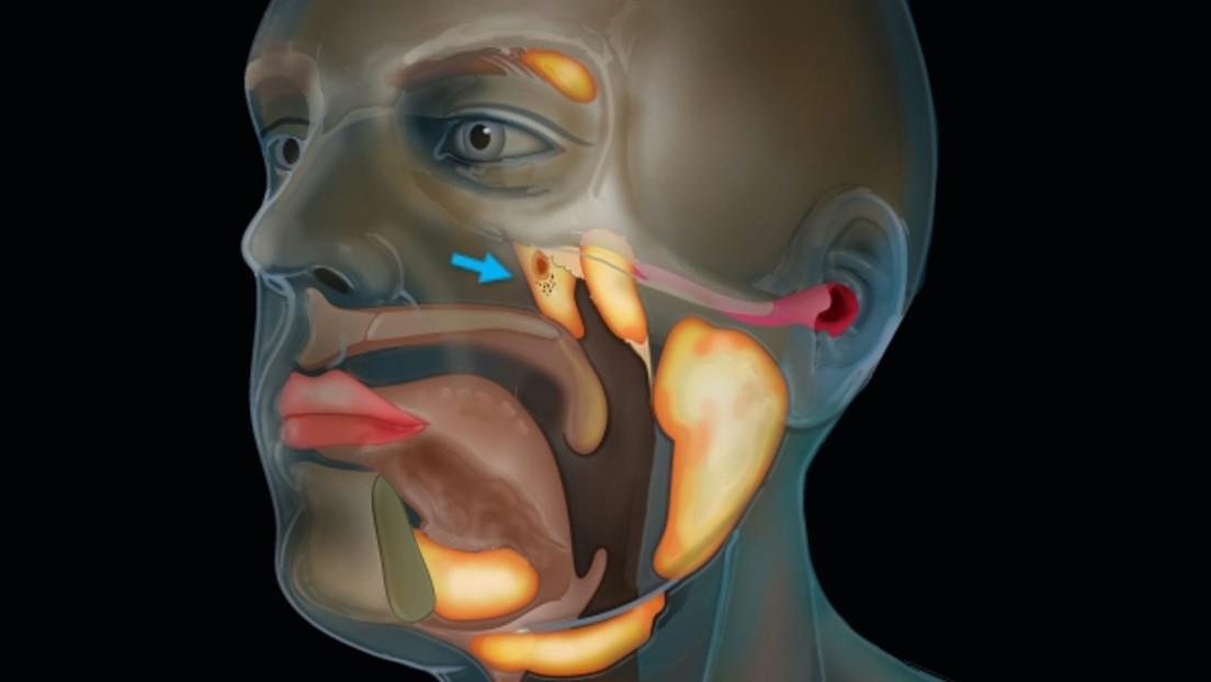 Hallan lo que podría ser un órgano previamente desconocido dentro de la cabeza humana