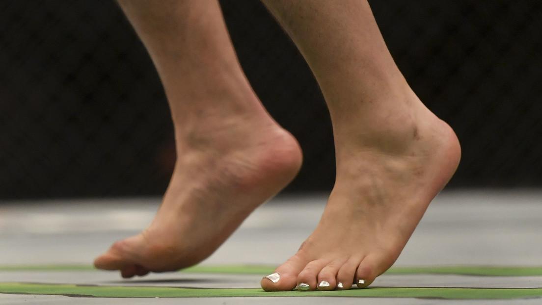 """""""Dedos de covid"""": el coronavirus puede cambiar el color de los dedos de los pies hasta por 5 meses"""