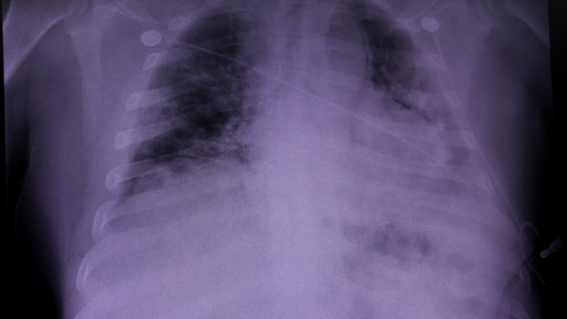 Identifican daños pulmonares que podrían estar asociados a un síndrome conocido como 'covid largo'