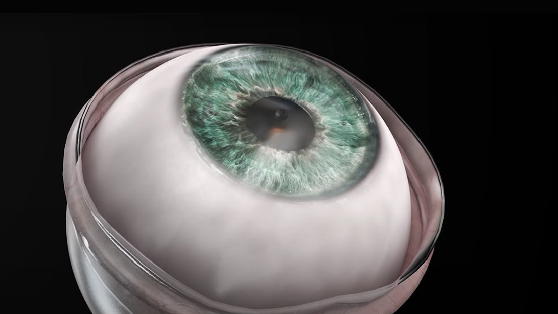Patient regains vision after corneal implantation with minimal incisions and sutures