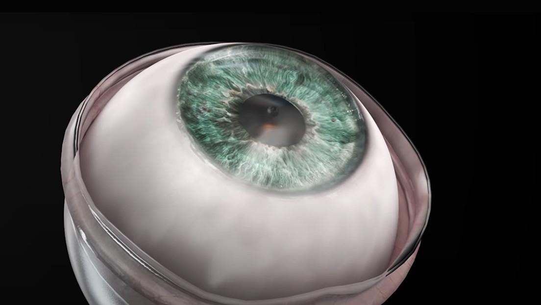 Paciente recupera la visión tras implante de córnea con mínimas incisiones y suturas