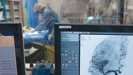 Científicos detectan daños en vasos sanguíneos del cerebro de pacientes que murieron por covid-19