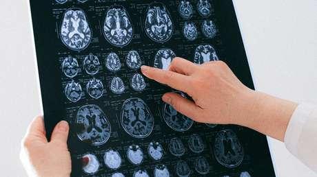 Descubren que un parásito que se encuentra en la carne poco cocinada podría estar relacionado con un raro cáncer cerebral