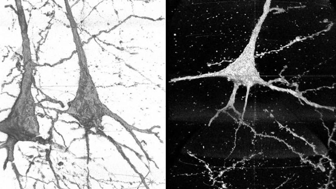 Científicos descubren algunas diferencias neuronales entre personas sanas y pacientes esquizofrénicos