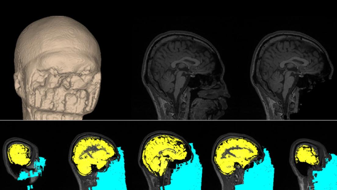 Desarrollan un método que puede modificar el funcionamiento del cerebro para reducir los miedos, cambiar los gustos y aumentar la confianza