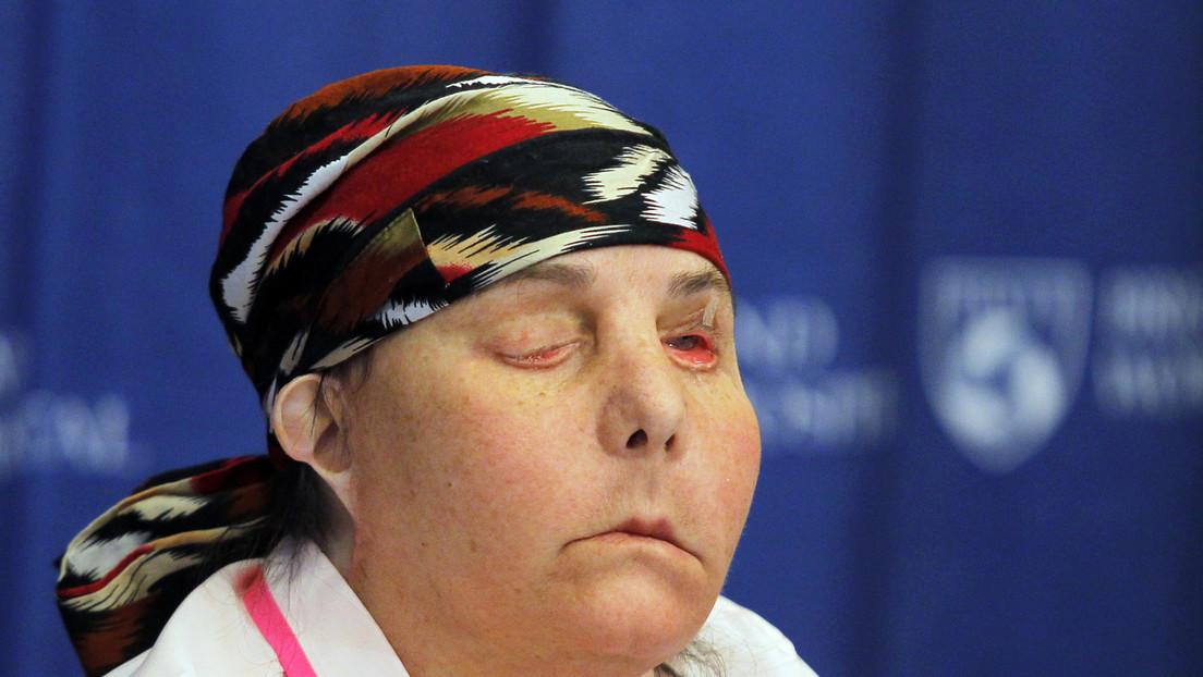 La primera persona en recibir dos trasplantes de cara en EE.UU. muestra su rostro (FOTO)