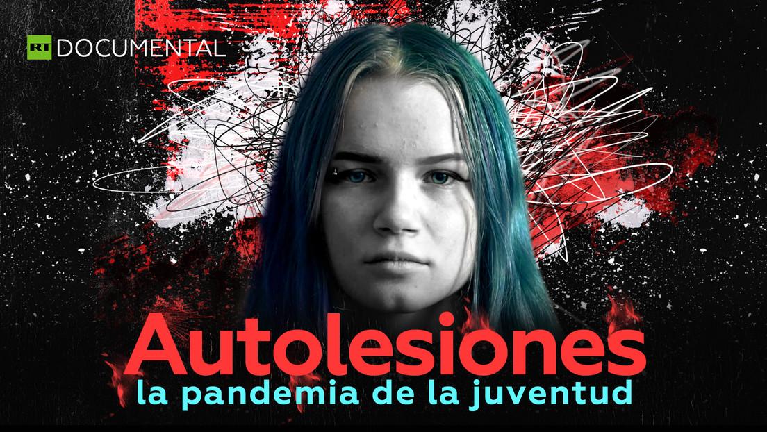 Autolesiones: la pandemia de la juventud