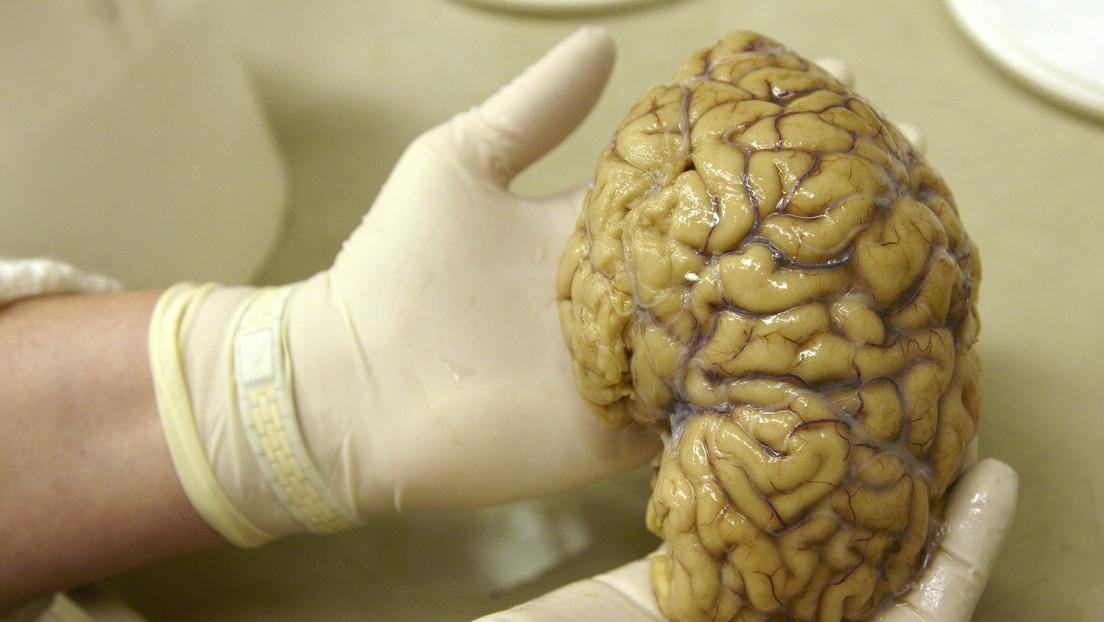 Un misterioso trastorno cerebral desconcierta a los médicos canadienses