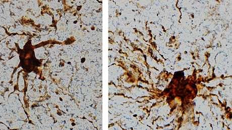 """Descubren en el cerebro """"células zombis"""" que continúan creciendo horas después de la muerte"""