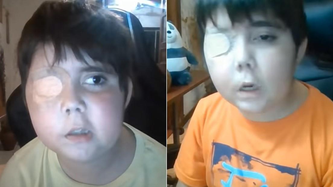 Un 'youtuber' de 11 años enfermo sueña con ser famoso: su historia se roba el corazón de la Red y gana millones de suscriptores en unas horas