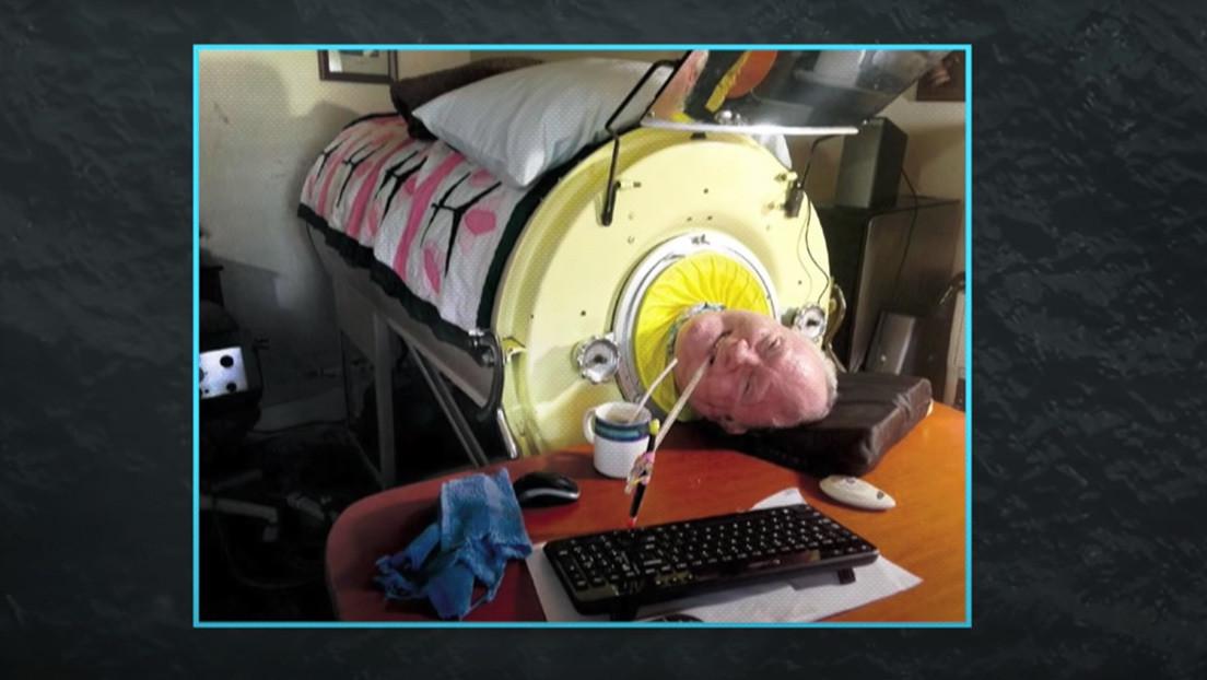 La historia del hombre del pulmón de acero que por casi 70 años ha vivido postrado en una máquina para poder respirar