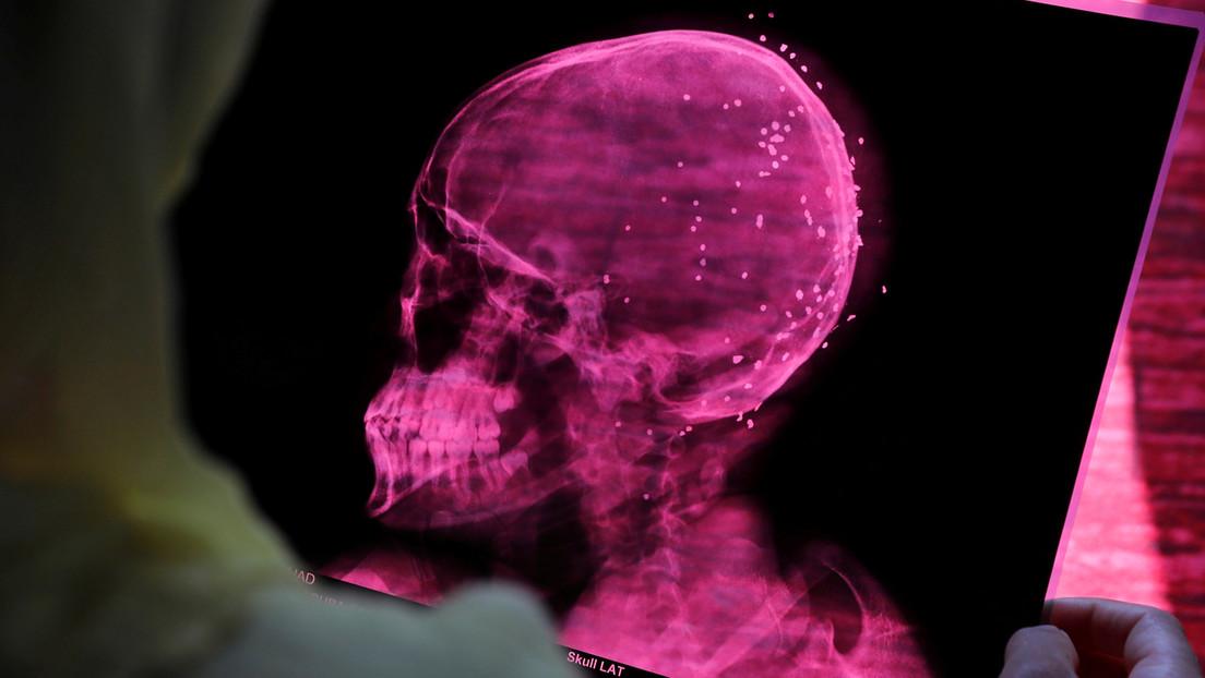 Estudio encuentra que el covid-19 altera el volumen de materia gris en el cerebro