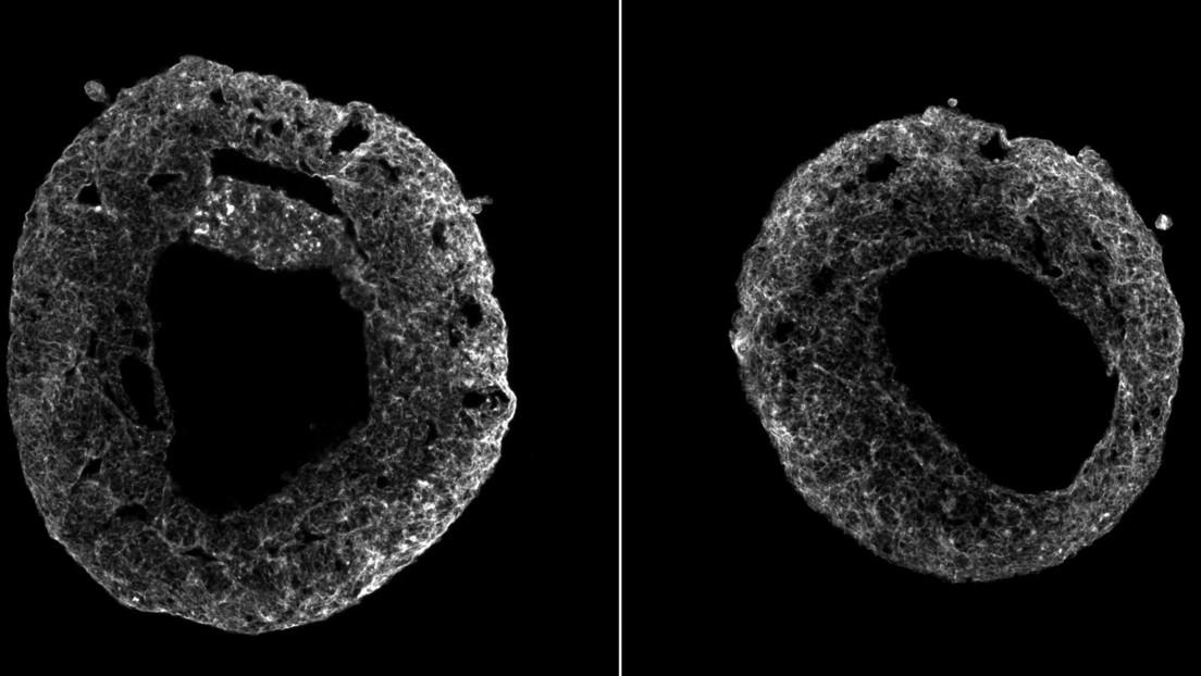 VIDEO: Late el primer modelo de corazón humano cultivado con células madre sin el uso de materiales artificiales