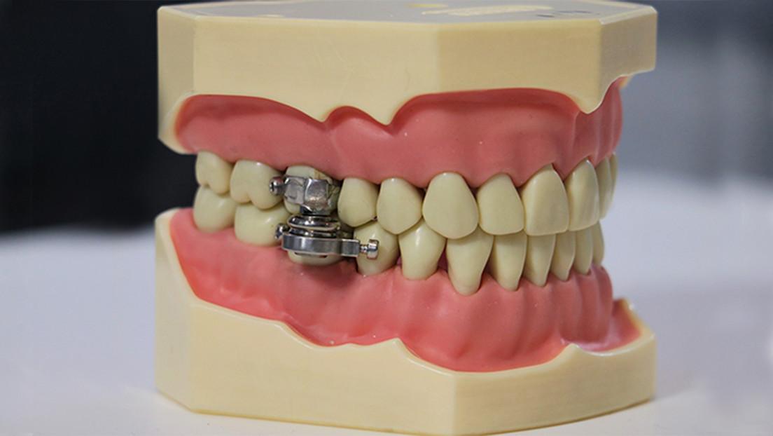 """Presentan el """"primer dispositivo del mundo para adelgazar"""" cerrando los dientes con un 'candado' (VIDEO)"""
