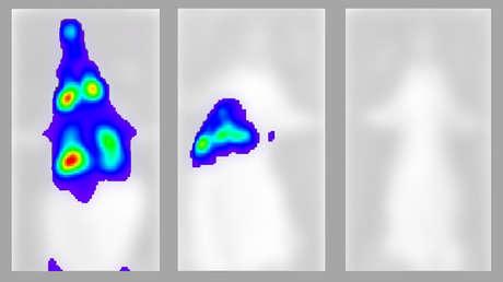 Graban por primera vez la propagación letal del SARS-CoV-2 desde que entra por la nariz, llega a los pulmones y se extiende a otros órganos (VIDEO)