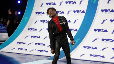 Seguidores del rapero Lil Uzi Vert le arrancan el diamante rosado de 24 millones de dólares que se implantó en la frente