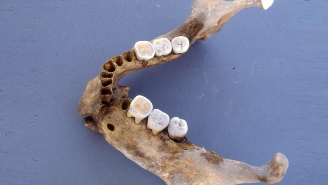 Descubren que un guerrero bizantino del siglo XIV que se rompió la mandíbula en dos fue curado con éxito por un cirujano experto
