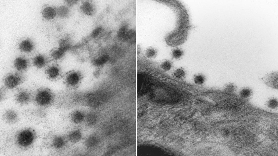 FOTOS: Cómo se ve la cepa Delta del coronavirus a través de un microscopio