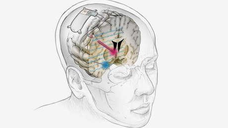 Implantan un dispositivo cerebral a una paciente que permite tratar por primera vez con éxito la depresión resistente a medicación y terapia