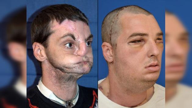 Nueva cara: realizan el trasplante de rostro más extenso del mundo