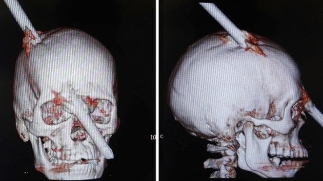 Brasil: un obrero con el cráneo atravesado por una barra sale ileso del quirófano