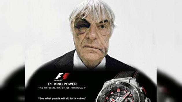 El patrón de Fórmula 1 saca provecho de sus hematomas